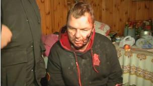 يقول بولاتوف انه تم صلبه