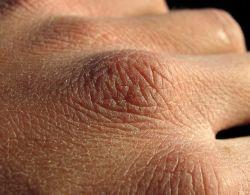 المواد البيولوجية النشطة مفيدة للجلد