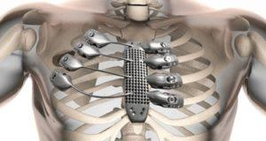 قفص صدرى 3D