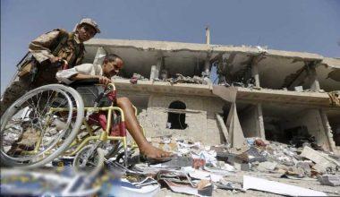 نتيجة العدوان..عدد المعاقين باليمن يضاهي سكان بعض الدول بالمنطقة!!