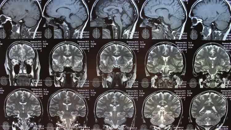 صورة علماء: الفقر يؤثر في حجم الدماغ