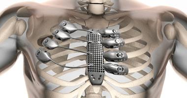 صورة بالفيديو..أول قفص صدرى 3D فى العالم ينقذ إسبانيًا يعانى من السرطان